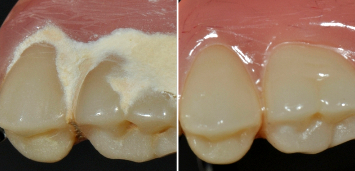 clean vs non-clean denture comparision